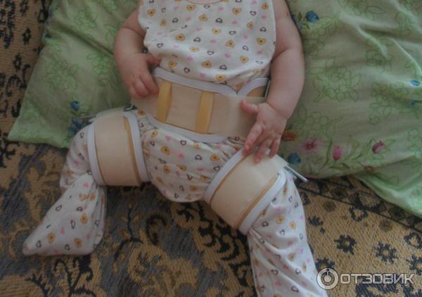 распорки при дисплазии тазобедренных суставов фото технологическая операция