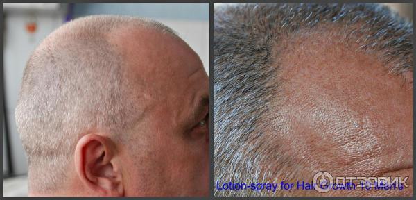 Средство для роста волос Minox lotion-spray for hair growth 10 Men's (для мужчин) фото