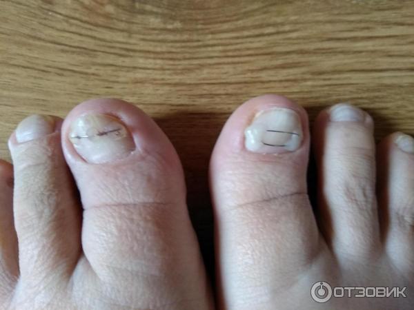 Лечение вросшего ногтя фото