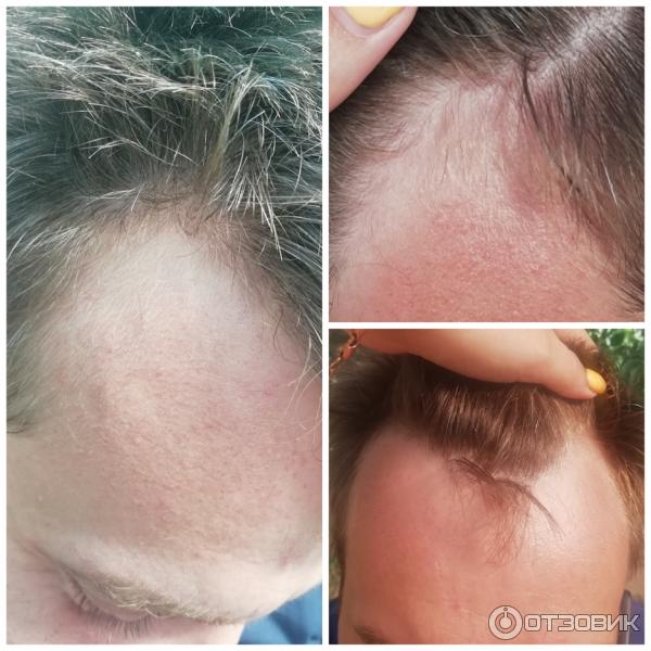 Средство для роста волос Minox Lotion-spray for hair growth 10 Men's для мужчин фото